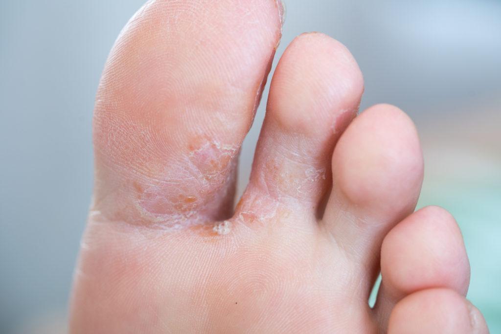 Fußsohle Juckt